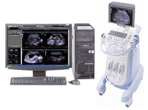 カラー超音波診断装置「SONIMAGE 513」